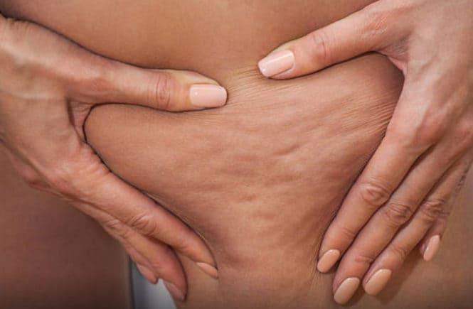 combattere-cellulite