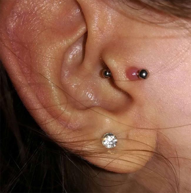 cheloide-piercing